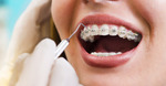 Orthodontists in Islamabad